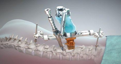 Mazor Robotics' Spine Assist underlättar ryggkirurgi