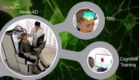 Behandling av Alzheimer med hjärnstimulering