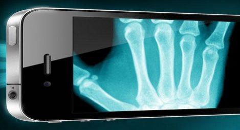 Röntgen med enbart en Smartphone